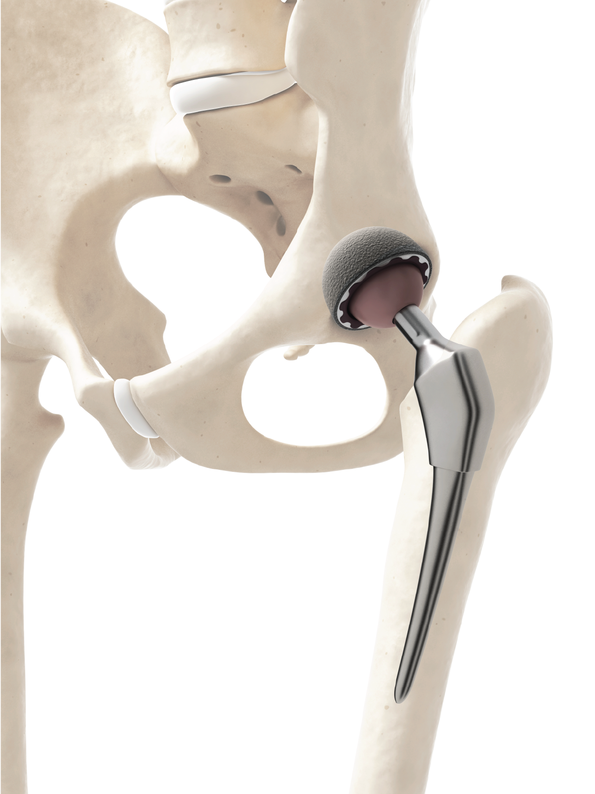Hip Diagram