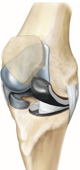Partial Knee Replacement Diagram