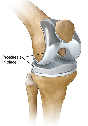 Total Knee Replacement Diagram